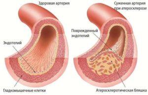 Как калина влияет на артериальное давление понижает или повышает его?