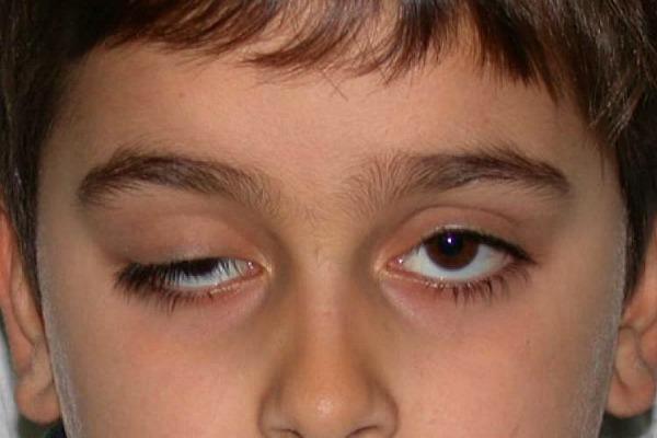 Синдром Маркуса Гунна у мальчика