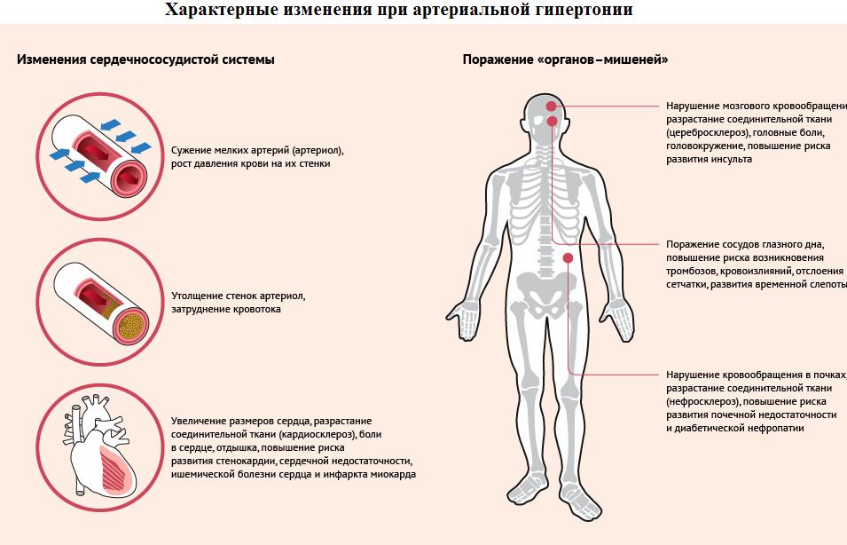 Чем отличается артериальная гипертензия от гипертонической болезни?