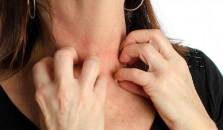Аллергия на перец