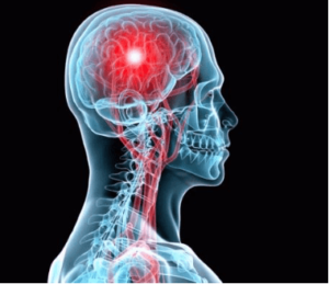 Почему болит левый висок головы? Причины и лечение