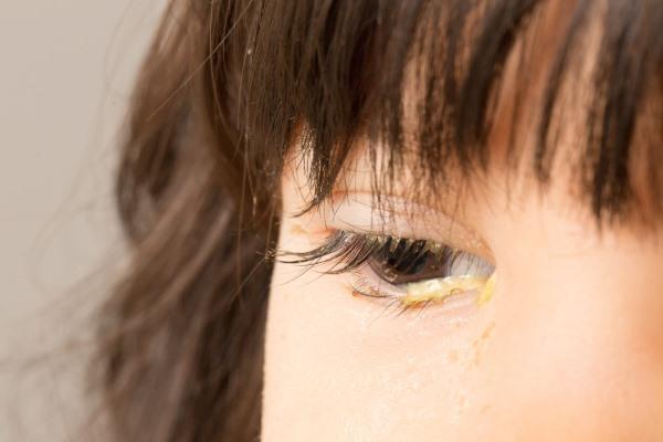 Глазные выделения