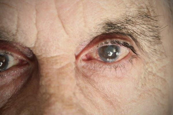 Мутные глаза
