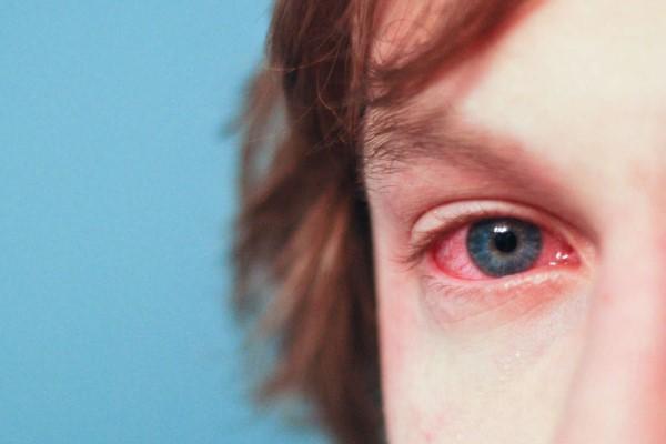 Аллергическая форма у детей
