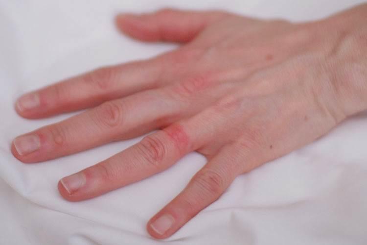раздражение от кольца на пальце