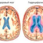 Высокое верхнее давление - причины и лечение