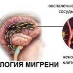На какой руке нужно мерить артериальное давление? Основные ошибки и рекомендации