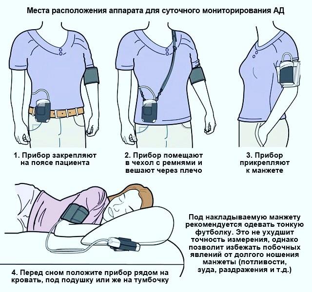 Суточный мониторинг артериального давления - как проводится?