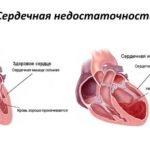 Что такое систолическое артериальное давление?