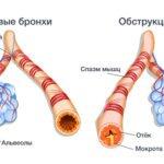 Чем отличается гипертония от гипертензии?
