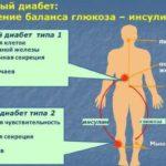 От чего назначают таблетки Гидрохлортиазид? Инструкция по применению и механизм действия