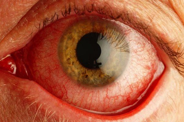 Покраснение белков глаз