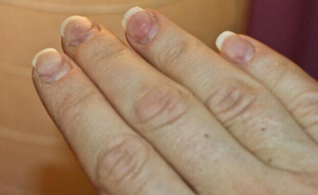 Аллергия на шеллак