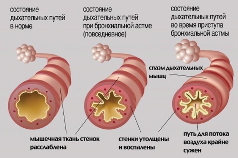 Астма и аллергия