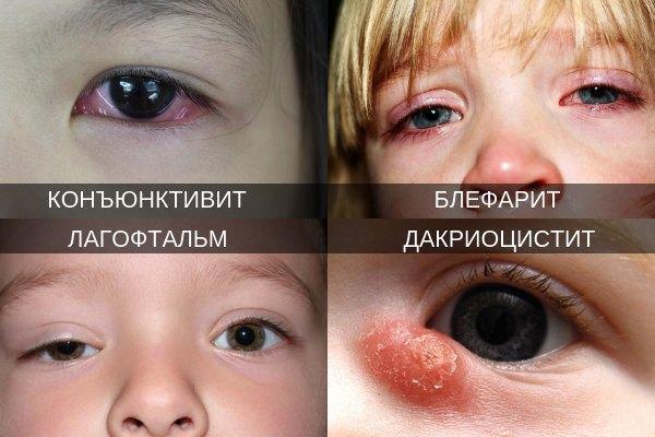Офтальмологические заболевания при частом моргании глаз