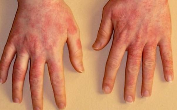 Аллергия на УФ лампу