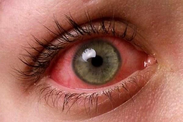 Покрасневший глаз при конъюнктивите