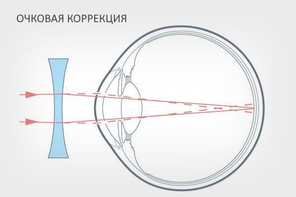 Оптическая коррекция