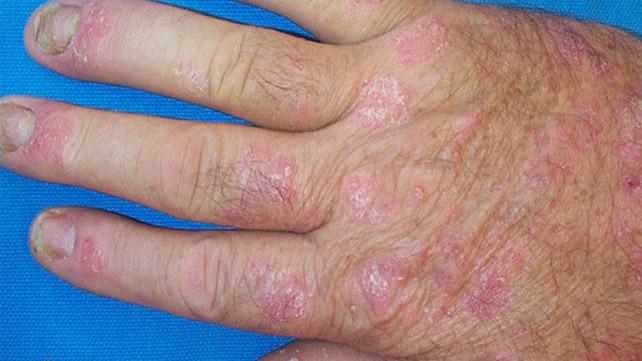 псориаз пальцев рук
