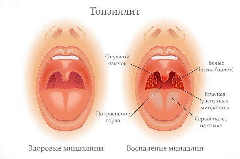 Температура при аденоидах