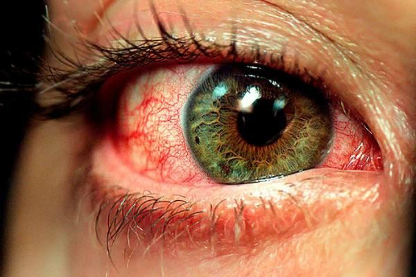 Уставшие глаза краснеют и болят