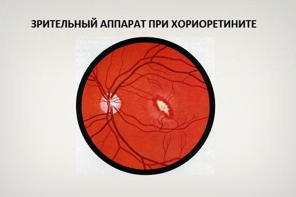 Зрительный аппарат при хориоретините