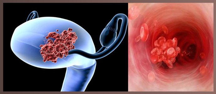 Аденокарцинома (железистый рак) матки