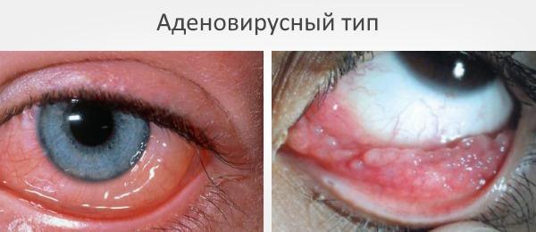 Аденовирусный тип