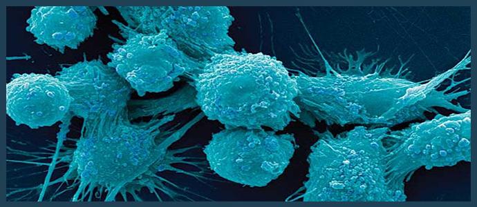 Анапластический рак