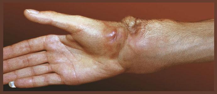 Ангиосаркома мягких тканей
