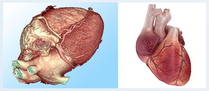 Ангиосаркома сердца