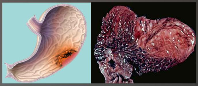 Диффузно-инфильтративный, Инфильтративно-язвенный рак желудка