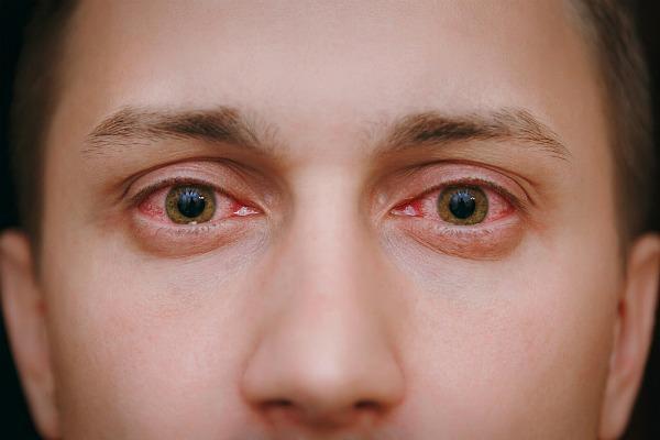 Хроническая форма конъюнктивита глаз
