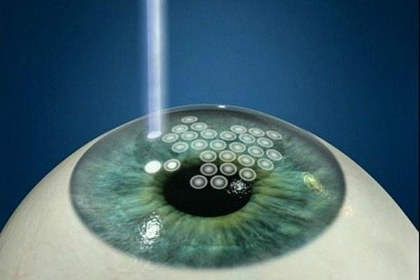 Фоторефракционная кератэктомия (OptiPRK)