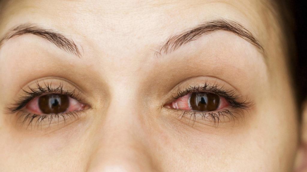 Виды, причины и лечение аллергического конъюнктивита у взрослых и детей