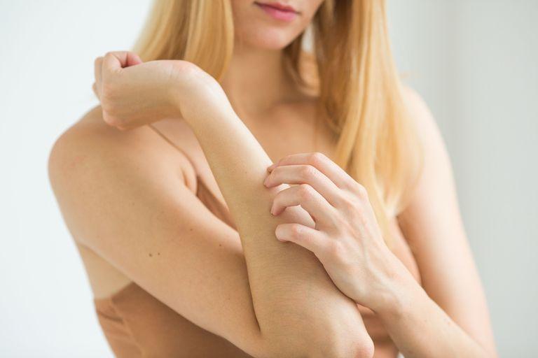 Аллергия на сливы и чернослив у взрослых и детей