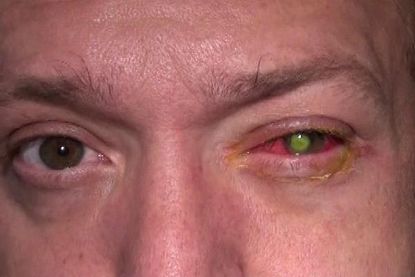 Гноится и болит глаз после операции по удалению катаракты