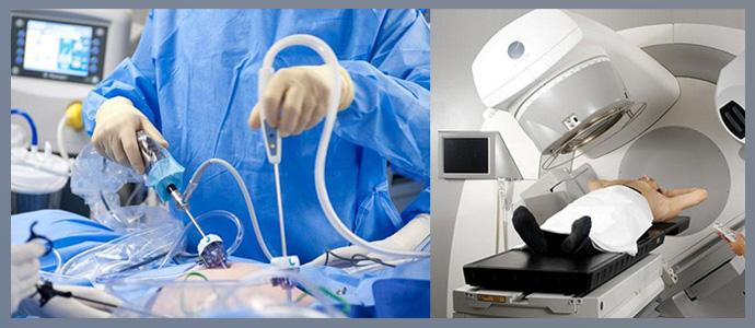 Хирургия, лучевая терапия