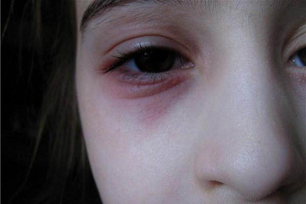 Хронический блефарит у ребенка