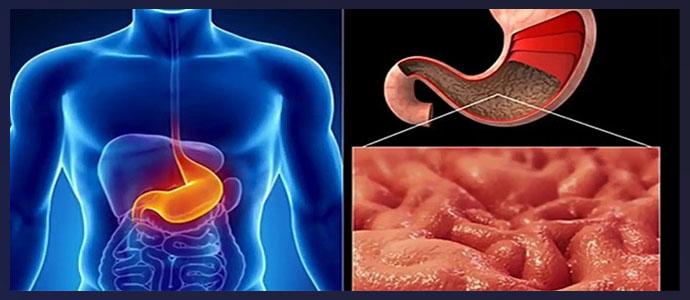 Инфильтративный рак желудка