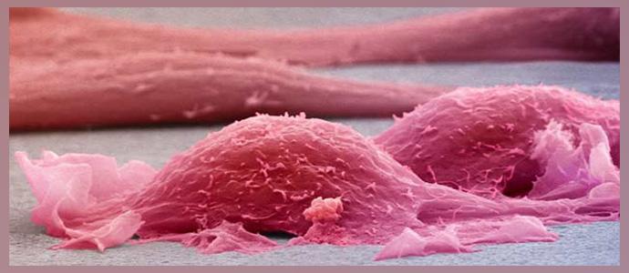 Эпителиоидная саркома мягких тканей