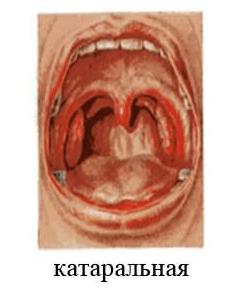 Катаральная ангина