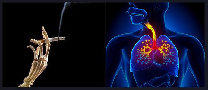 Курение, хронические заболевания дыхательной системы