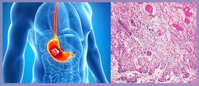 Недифференцированный рак желудка