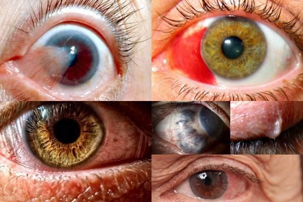 Неинфекционные заболевания глаз