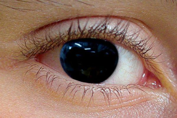 Глаз с аниридией