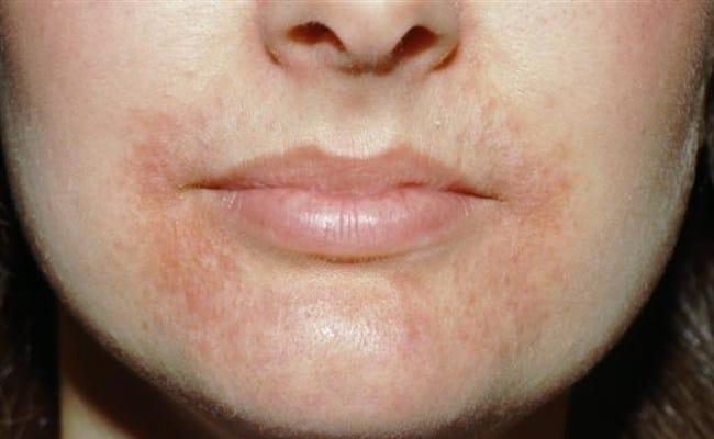 дерматит около рта