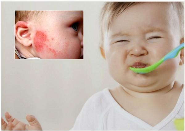 Аллергия на казеин