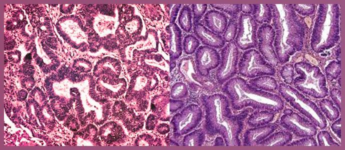 Плоскоклеточная и тубулярная аденокарциномы