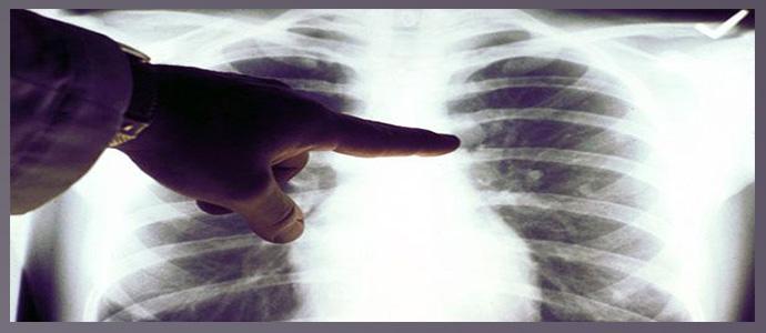 Плоскоклеточный рак легкого